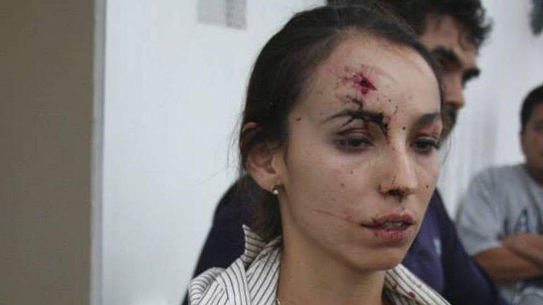 A jornalista Karla Silva depois da agressão de 2014