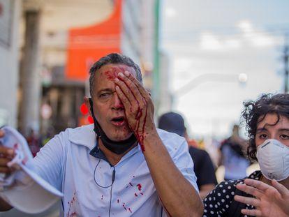 Daniel Campelo da Silva, 51 anos, que ficou cego de um olho a após ser atingido por uma bala de borracha da polícia, que dispersou violentamente o protesto neste sábado.
