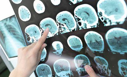 Cérebro de um paciente com Alzheimer.