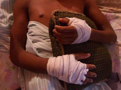 Um dos quatro sobreviventes da operação foi alvejado nas mãos e na coxa com tiros de fuzil.