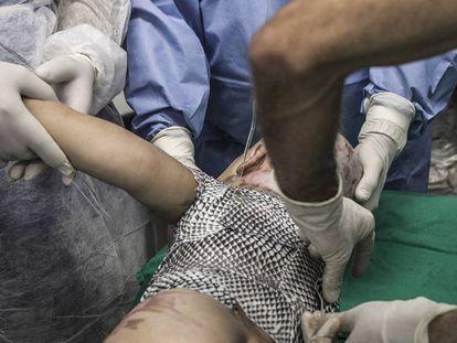 Médicos aplicam pele de tilápia em um bebê de um ano e meio, queimado com água quente, no Instituto Dr. José Frota.