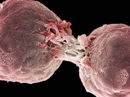 O tratamento contra o câncer que irá substituir a quimioterapia