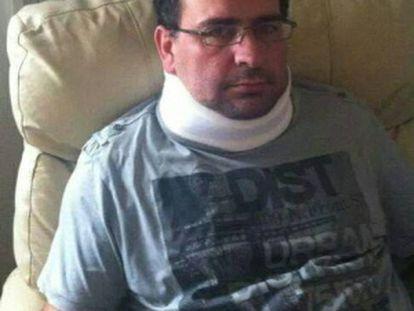 Adolfo Infante, depois da agressão sofrida em outubro de 2013.