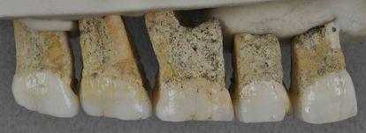 Os dentes de 'Homo luzonensis' encontrados na caverna de Callao (Filipinas).
