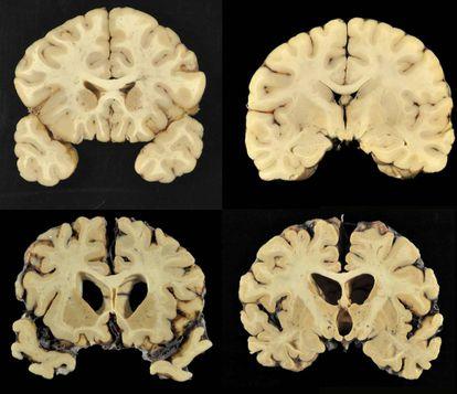Acima, um cérebro normal; abaixo, um com ETC grau 4 em uma imagem do estudo.