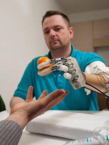 Dennis Aabo Sorensen pega uma tangerina com sua mão biônica