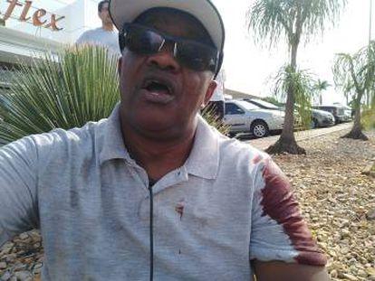 Juarez logo após notar que havia sido ferido com um estilete.