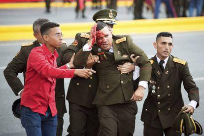 Um militar venezuelano ferido, momentos depois do incidente