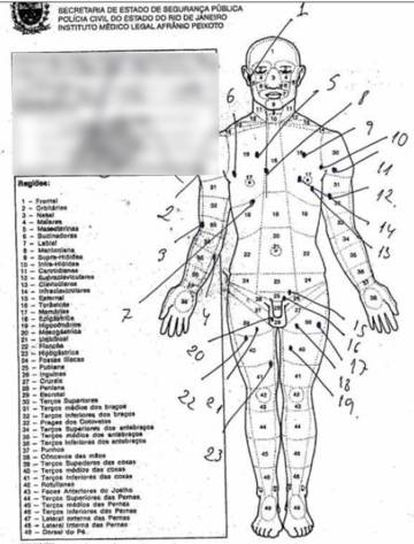A autópsia que mostra os 30 tiros no corpo do pastor Anderson do Carmo.