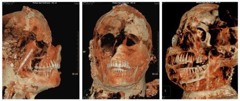 Tomografia axial computadorizada de uma das múmias de Pompeia.