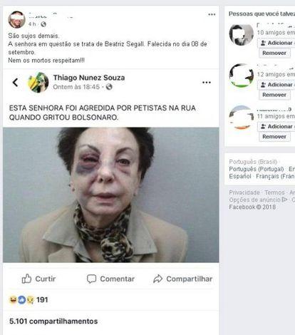 Foto da falecida atriz Beatriz Segall após um acidente foi difundida por simpatizantes do Bolsonaro de maneira falsa.