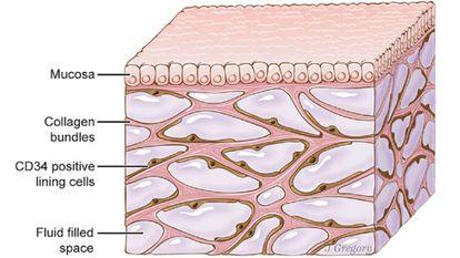 Recriação artística das cavidades do interstício sob a pele.