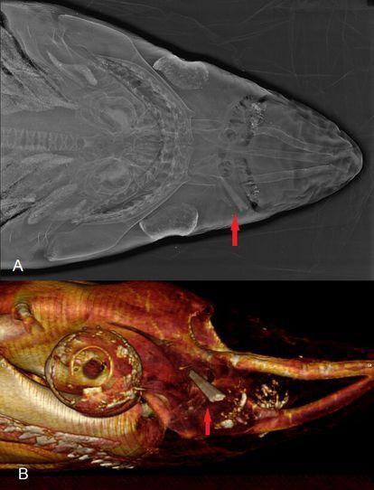 Acima, uma radiografia de um exemplar encontrado em Vera (Almería). Abaixo, vista lateral do ferimento em uma tomografia computadorizada. A flecha vermelha assinala o ferimento causado pelo espadarte.