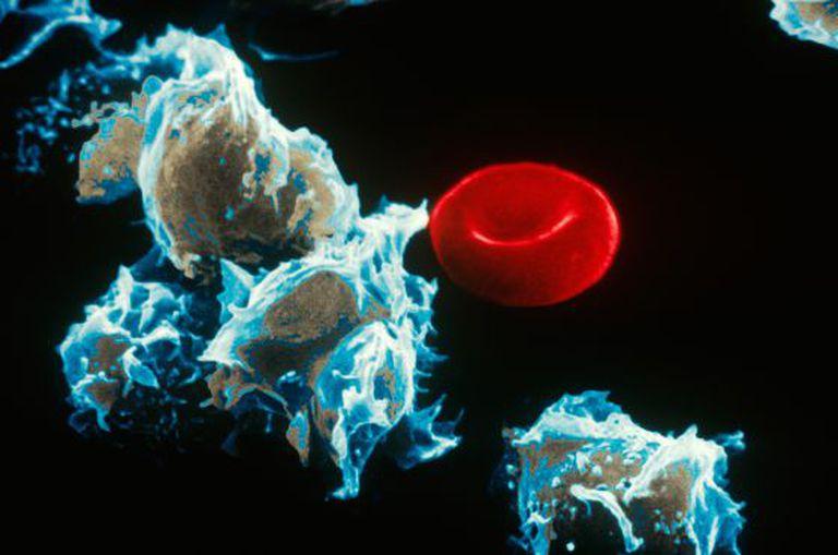 Células com leucemia (esquerda) junto a um glóbulo vermelho