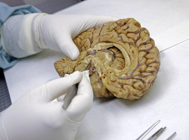 Cérebros em estudo na Fundação CEM, em Madri.