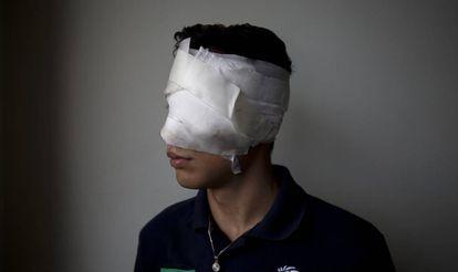 Spider-Man perdeu um olho durante um confronto com forças de segurança.
