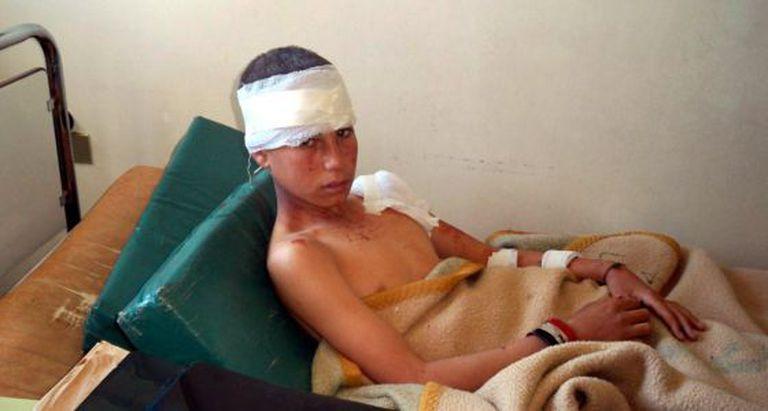Menino ferido em um hospital de Hama (Síria).