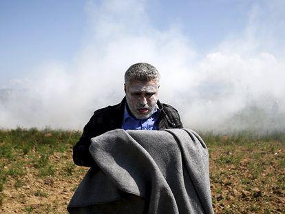 Refugiado após inalar gás lacrimogêneo.