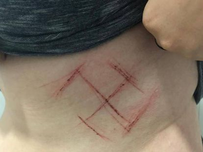 Imagem do ferimento feito no corpo da vítima.