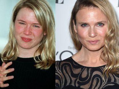 A surpreendente transformação de Renée Zellweger