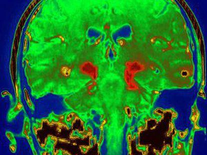 Cérebro de uma pessoa com Parkinson.