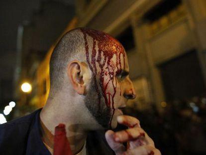 Manifestante ferido, nesta sexta, em São Paulo.