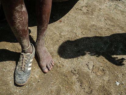 Um menino da favela da Cidade de Deus calça só um sapato. A redução da pobreza infantil é um dos grandes desafios do Brasil.