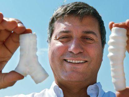 O cirurgião italiano Paolo Macchiarini, com as traqueias sintéticas que usava em seus transplantes.