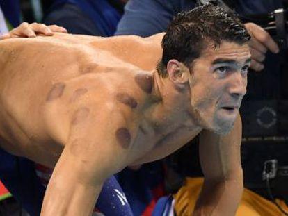 O nadador apareceu com marcas roxas nas costas, efeito de uma terapia chamada  cupping