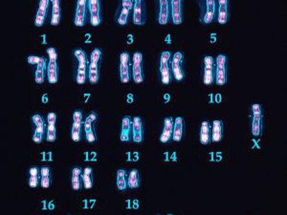 Cromossomos de um homem com síndrome de Down, onde se veem as três cópias do 21.