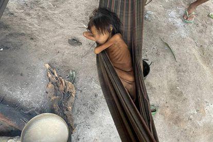 Criança Yanomami com desnutrição e malária, na aldeia Maimasi.