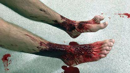 Os pés de Sam Kanizay depois do ataque, em foto tirada por seu pai
