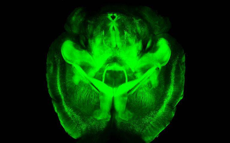 Imagem de um cérebro de camundongo.