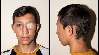 Nicolás Bernal, de 13 anos, sofreu um traumatismo craniano durante os protestos pelo impacto de uma granada de gás lacrimogêneo, em Bogotá, Colômbia. CAMILO ROZO