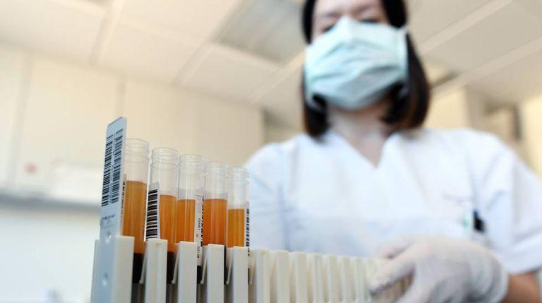Amostras de sangue e plasma em um laboratório na Alemanha que, assim como o Brasil, investiga a cura do coronavírus.