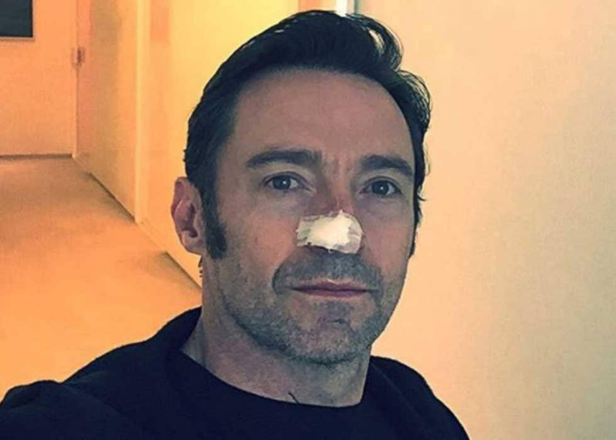 Cancer de piele - Wikipedia Que es cancer basocelular