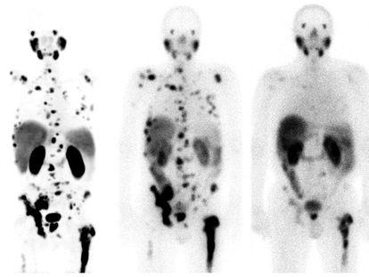 Resposta à teragnose com lutécio-177 em um câncer de próstata com metástase, no Hospital Universitário de Heidelberg (Alemanha).