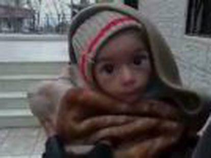 Após vazar fotos de crianças desnutridas, três cidades sitiadas recebem comida e medicamentos pela primeira vez em três meses