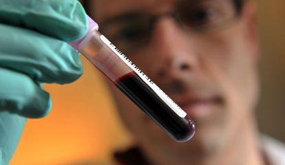 O novo exame de sangue para detectar a doença neurodegenerativa pode custar entre 376 e 1.135 reais.