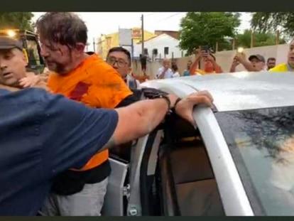 Cid Gomes após ser baleado em Sobral.