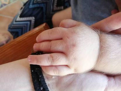 A mão de um bebê afetado pela síndrome do homem lobo.