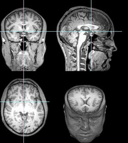 O estudo do cérebro de Gareyev mostrou conexões extraordinárias entre diferentes partes.