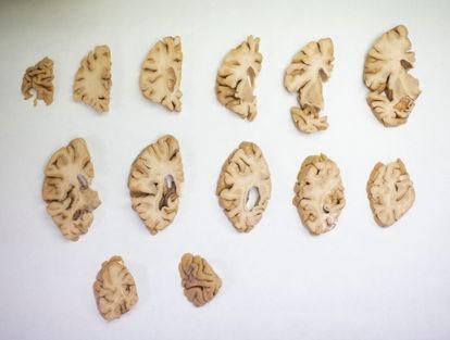 Um cérebro humano dissecado na Fundação CIEN, em Madri.