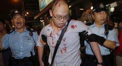 Manifestante pró-democracia ferido por defensores de Pequim.