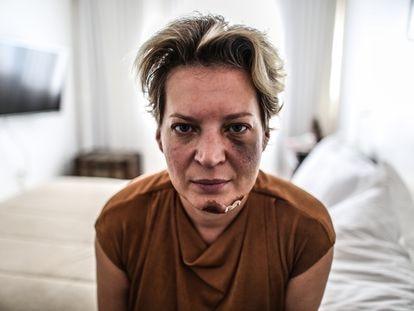A deputada Joice Hasselmann (PSL-SP) é fotografada com hematomas no rosto em seu apartamento funcional em Brasília, na última sexta-feira.