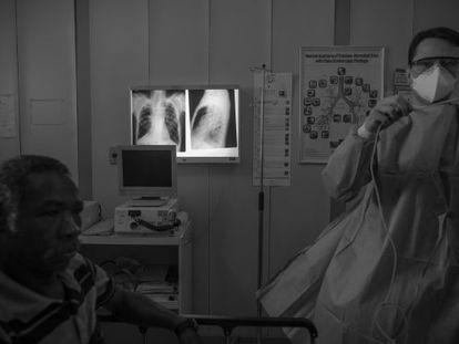 Um homem com tuberculose no Hospital Ary Parreiras, em Niterói.