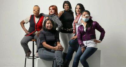 Vítimas de ataques com ácido na Colômbia.