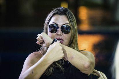 Elaine Caparroz mostra como se defendeu do homem que tentou matá-la