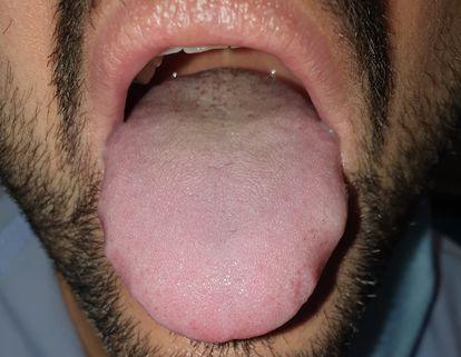 Língua dilatada e com marcas dos dentes nas laterais de um paciente com covid-19. HOSPITAL UNIVERSITÁRIO LA PAZ