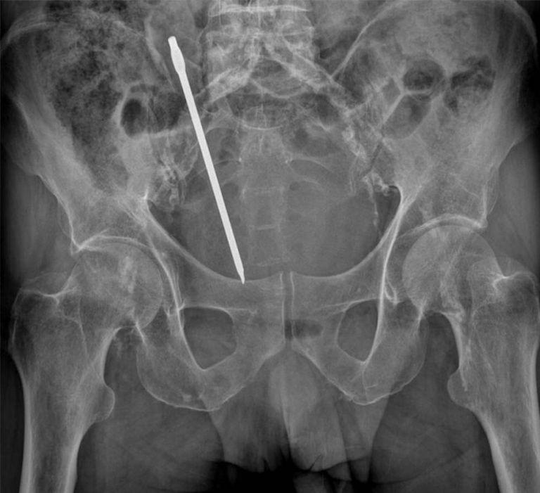 Radiografia de um homem de 68 anos com um destornillador no reto, em Cartagena.